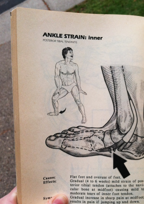 Acupressure-for-Athletes-Lateral-Ankle-Sprain-3